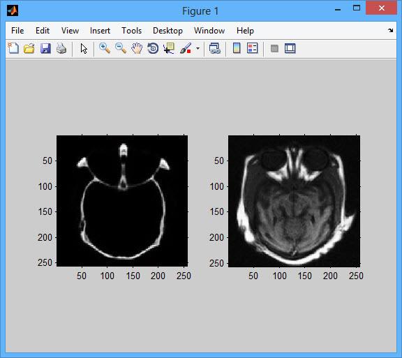 پروژه فیوژن تصویر با الگوریتم DT-CWT با نرم افزار MATLAB پروژه مهندسی پزشکی:پروژهمتلب ارزان